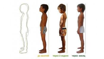 Как исправить осанку у ребенка за 1 месяц: 7 волшебных упражнений