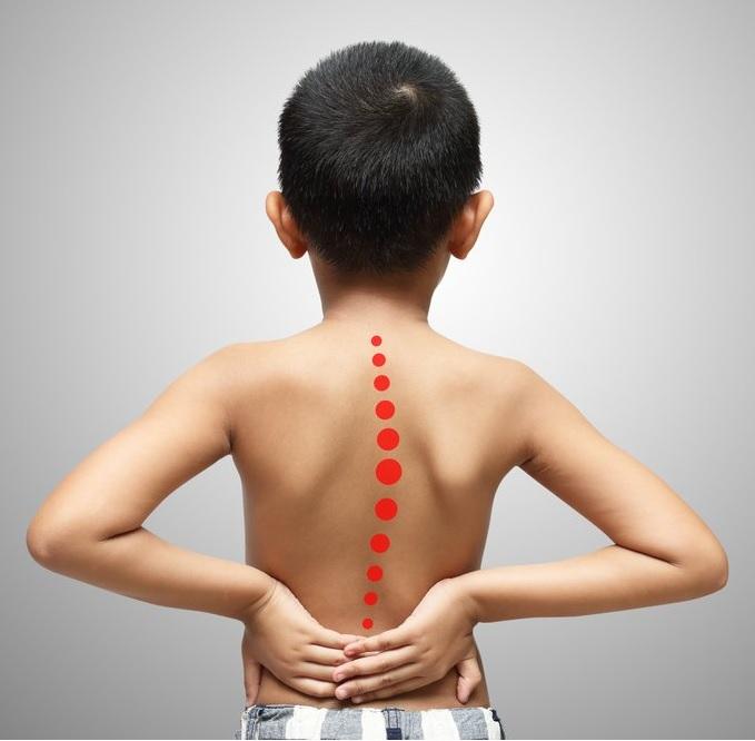 Последствия неправильной осанки у детей