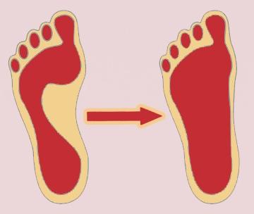 Последствия плоскостопия у детей